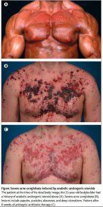 acne_steroide